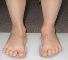 Foot Functional Orthopedics | Treatment Of Foot Fungus